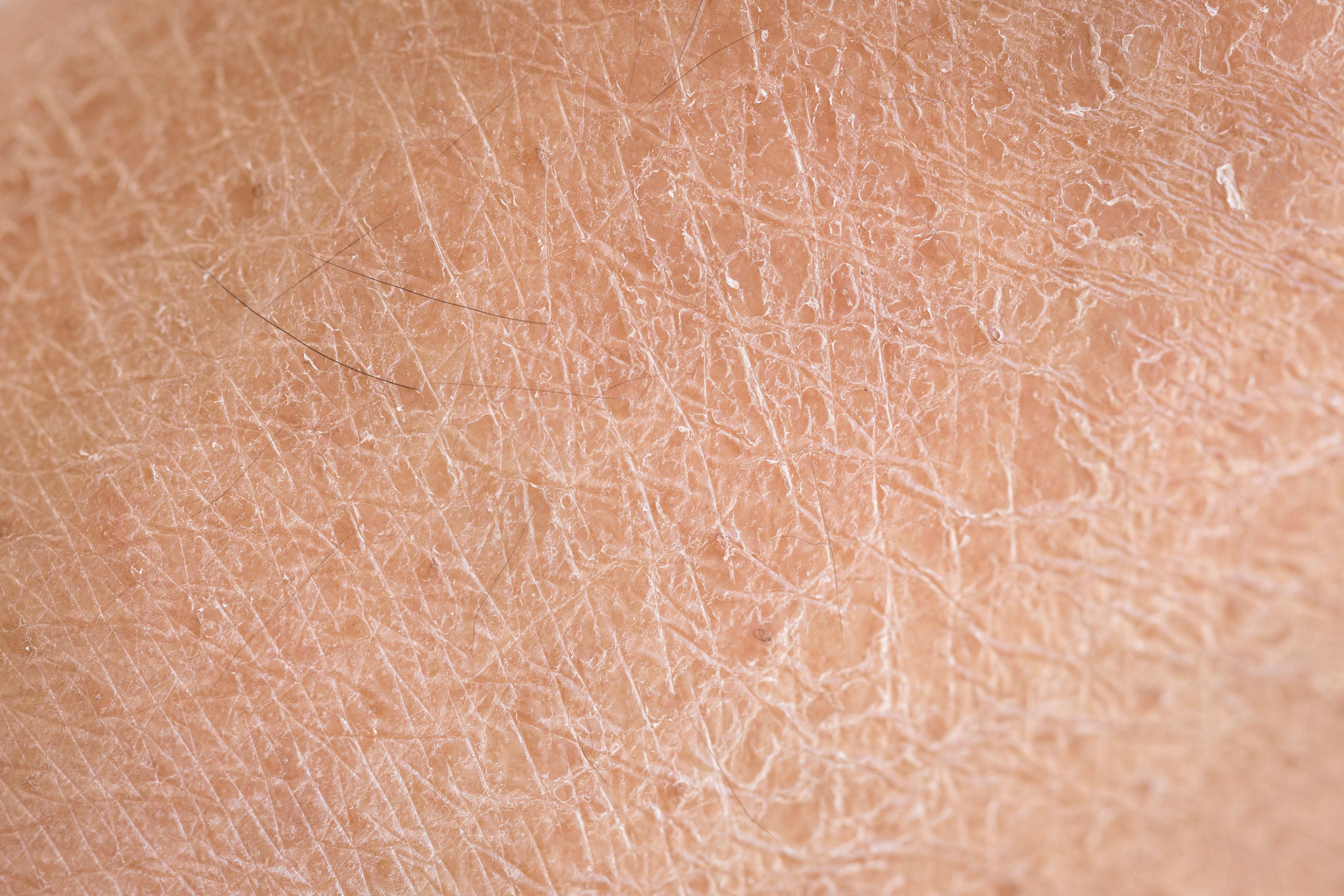 Serum for dry skin